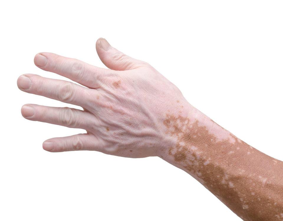 Лечение витилиго маслом черного тмина