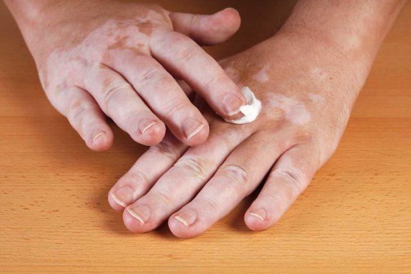 Лечение витилиго на руках