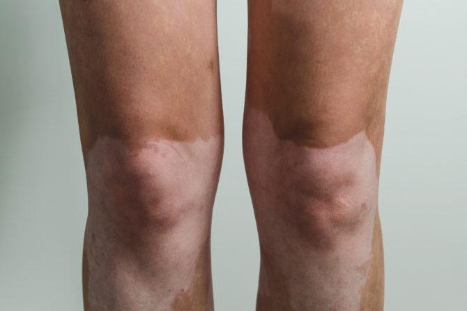 Лечение витилиго на ногах